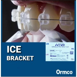 Ormco ICE System