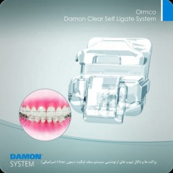 Ormco Damon Clear Self Ligate System