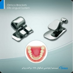 Ormco Brackets STb Lingual System